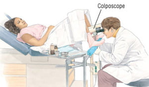 Colposcopy examination
